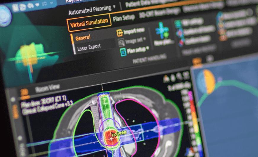 Virtual simulation | RaySearch Laboratories